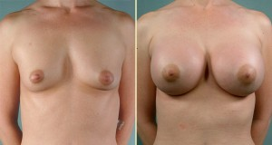 Effects of breast enlargement
