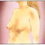 Vor der Bruststraffung