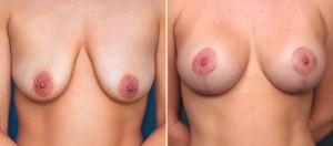 Vor und nach der Bruststraffung