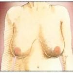 Innan bröstförminskning