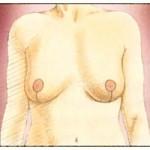Efter bröstförminskning