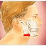 Chin Implant Surgery
