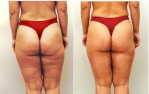 Mesotherapy ennen ja jälkeen