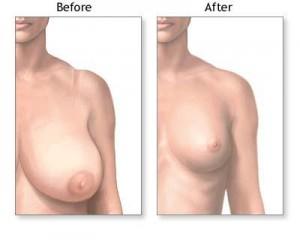 Bröstförminskning effekt