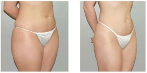 Liposuction effect