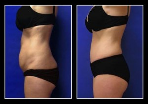 Przed i po zabiegu plastyki brzucha w Polsce