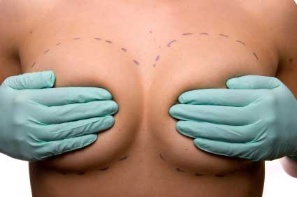 Breast Reconstruction in Poland