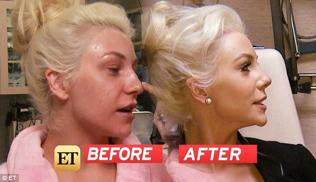 Before after Courtney Stodden rhinoplasty