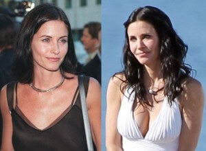 Courteney-Cox-Breast-Implants