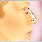rhinoplasty-2-150x150