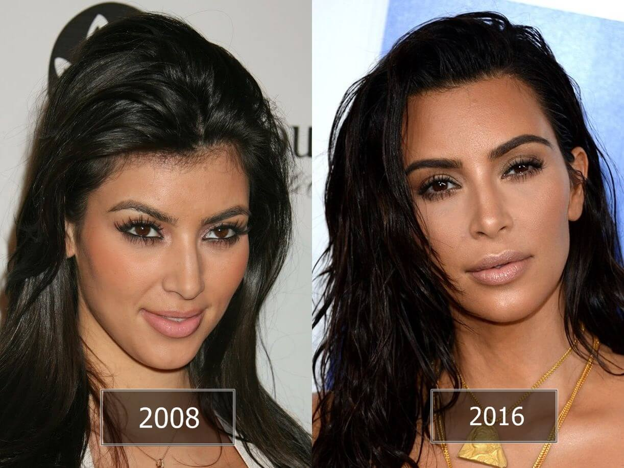 celebrities rhinoplasty hollywood stars before and after rhinoplasty. Black Bedroom Furniture Sets. Home Design Ideas