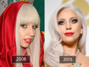 Lady gaga rhinoplasty