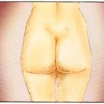 After Liposuction in Poland