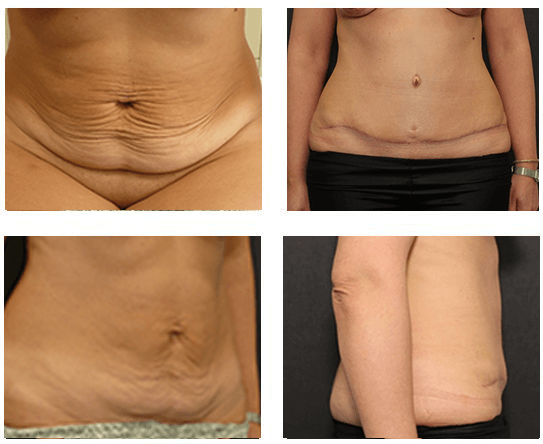How Much Does A Full Tummy Tuck Cost Uk Anti Feixista