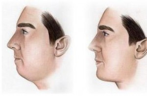 After chin surgery