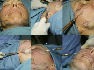 Fat graft procedure