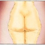 liposuction-150x150
