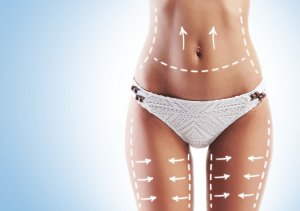 SmartLipo – All you need to know