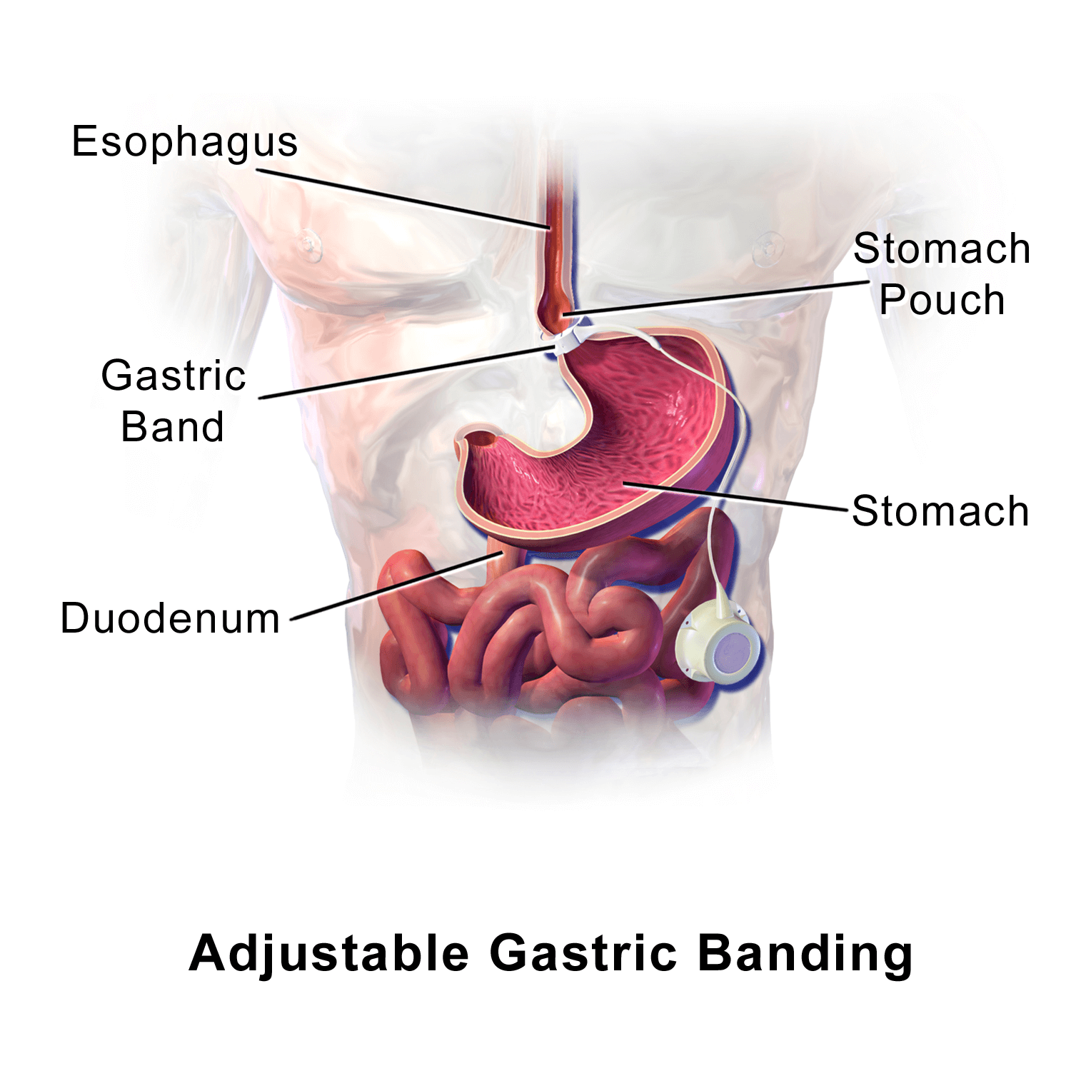 gastric band explaination