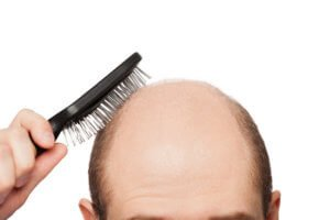 FUE hair transplant in Poland