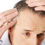 Who is a good candidate for hair transplant in Poland?