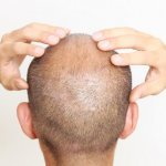 Scarring after hair transplant abroad