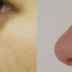 Case Study – rhinoplasty in Poland – Elizabeth