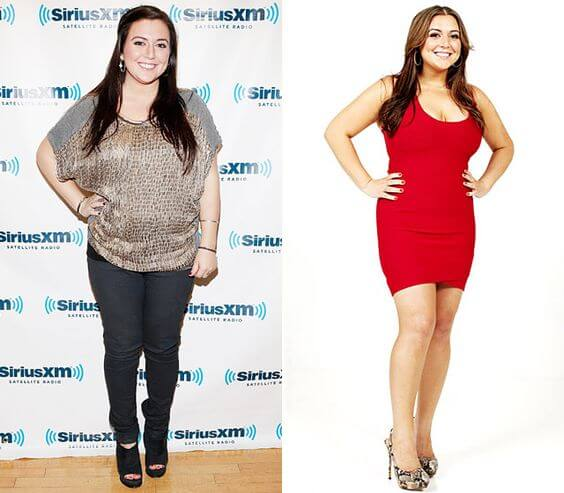 Lauren Manzo before and after gastric surgery