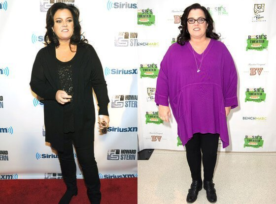 rosie o'donnell before and after gastric surgery