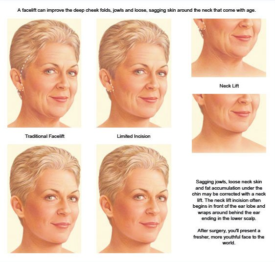 facelift description